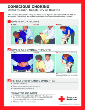 Free Minnesota Conscious Choking Poster PDF